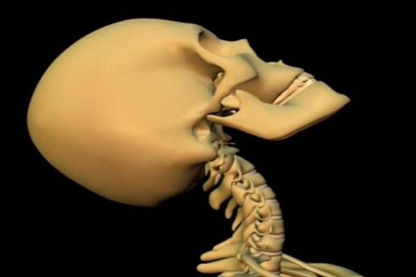 Chiropractic Treatment for Whiplash: Is It A Good Idea?